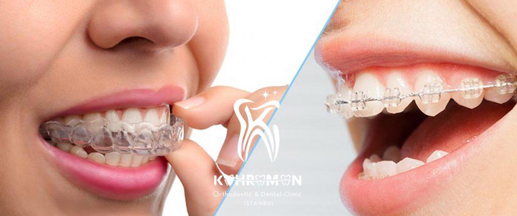 Telsiz ortodonti ve Şeffaf diş teli farkları