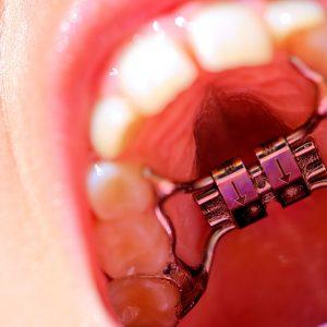 Hızlı Üst Çene Genişletme Kahraman Ortodonti