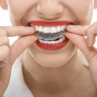 Kahraman Ortodonti Şeffaf plaklarla ortodonti