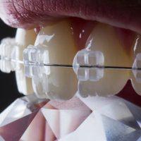 safir braket Ortodontist Fatih Kahraman